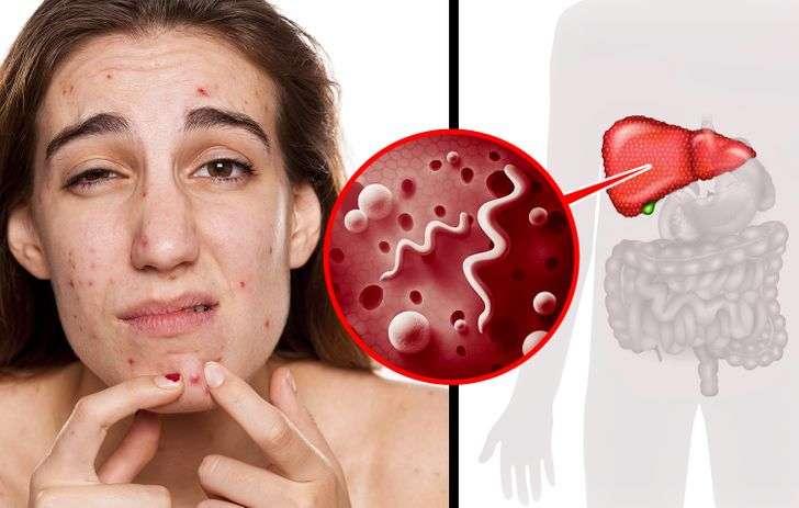 Ketahui Tanda-Tanda dari Tubuh Sedang Membutuhkan Detox