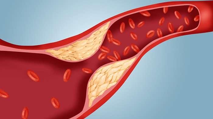 Tips Efektif untuk Menjaga Kadar Kolesterol Tetap Normal